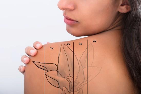 usuwanie-tatuazu-katowice