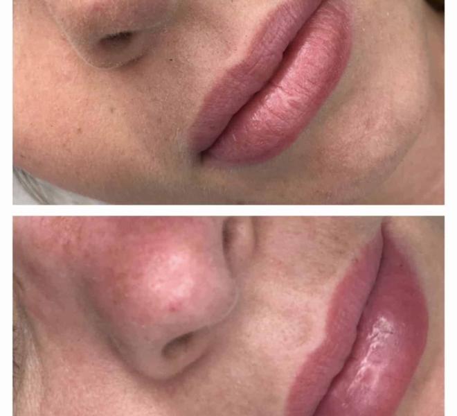 makijaż-permanentny-ust-12-min