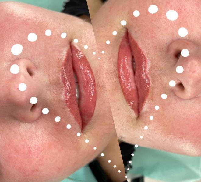 makijaż-permanentny-ust-3-min