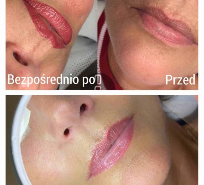 makijaż-permanentny-ust-9-min